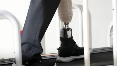 로봇의족 '나의 새로운 발'