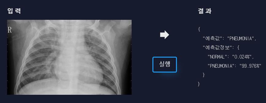 샘플용 폐 사진을 폐 질환 예측 서비스로 분석한 결과, 폐렴이라는 판단이 나왔다.