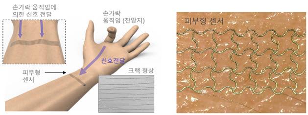 딥러닝된 피부형 센서 구성. 은 나노 입자를 레이저로 소결해 민감 측정이 가능한 크랙형상을 만들어 냈다.