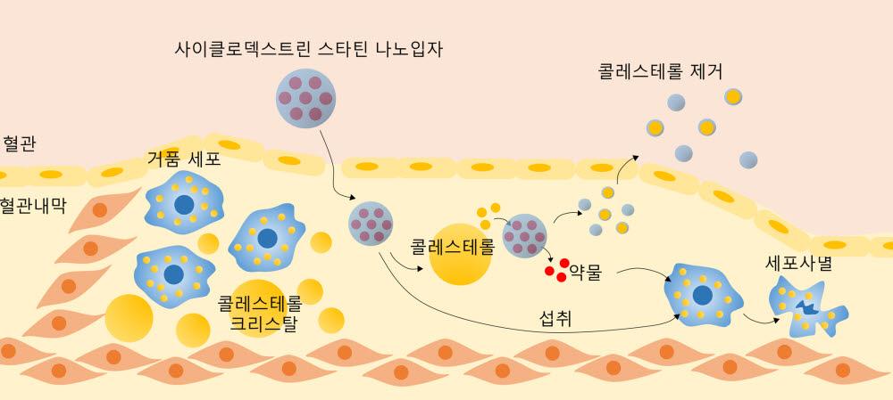 사이클로덱스트린-스타틴 나노입자의시너지 치료 효과를 보여주는 모식도