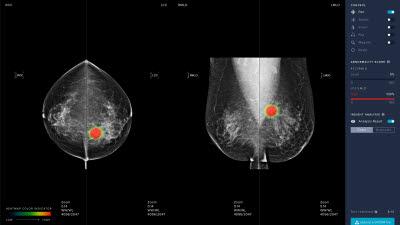 루닛 유방암 진단 AI 소프트웨어, 유럽 CE 인증 획득