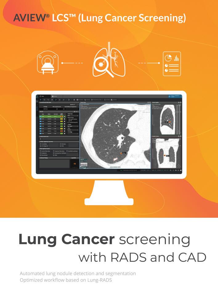 코어라인소프트, AI 폐암 검진 솔루션으로 글로벌 공략