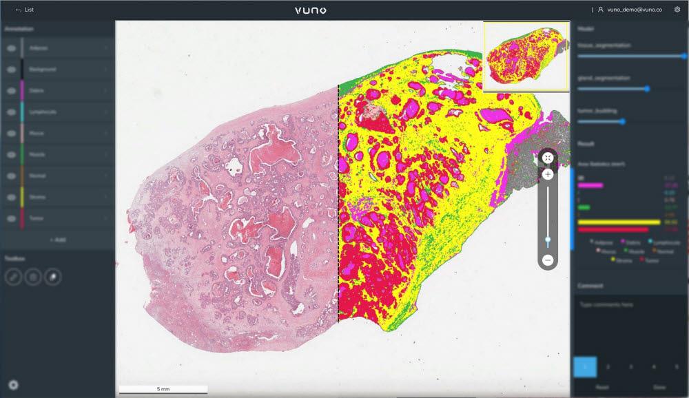 뷰노의 인공지능 기반 병리 영상 정량화·분석 플랫폼 뷰노메드 패스랩(VUNO Med-PathLab) 스크린샷
