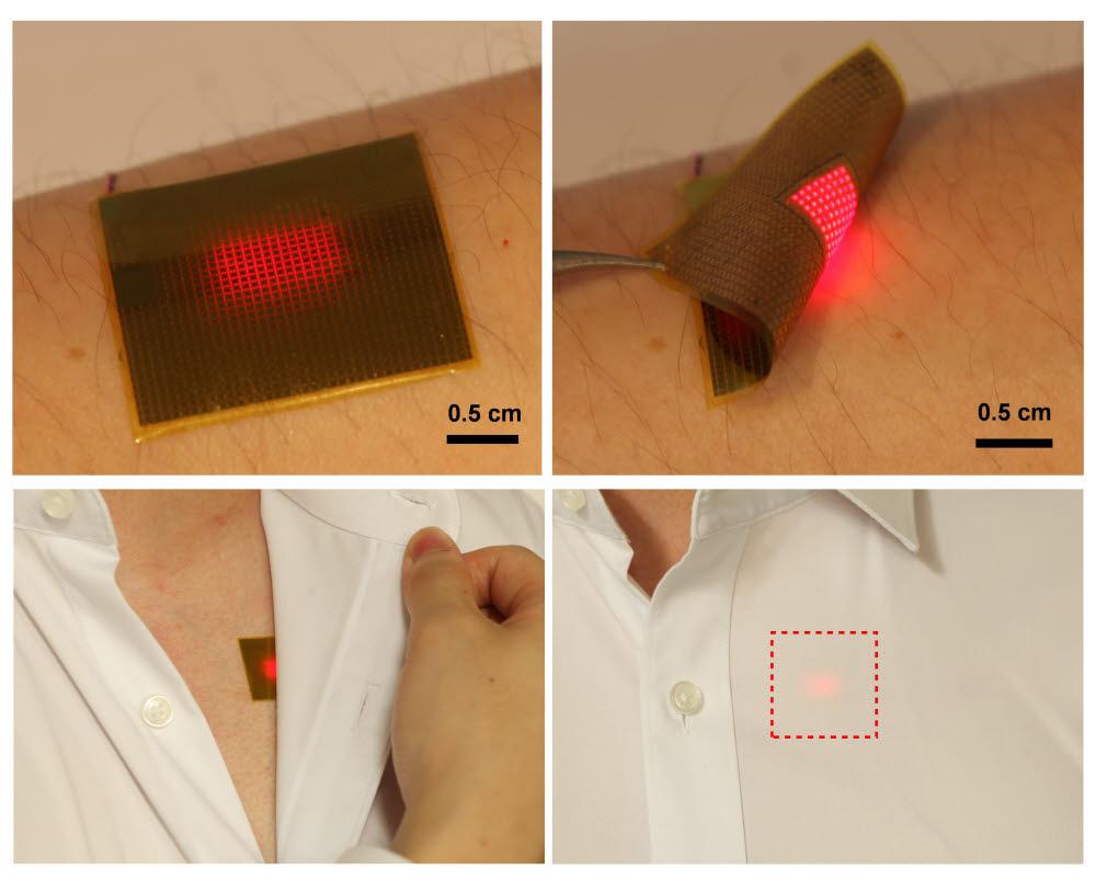 피부에 자유롭게 붙였다 뗄 수 있는 유연한 마이크로 LED 패치(위쪽). 아래는 옷 속 피부에 부착해 사용할 수 있음을 보여준다.