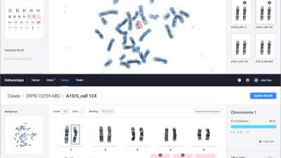 GC녹십자의료재단, 두에이아이와 '염색체 정렬·판독 인공지능 솔루션' 공동개발