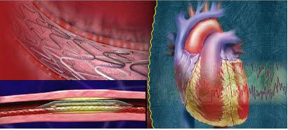 스텐트 혈관 삽입 구상도.