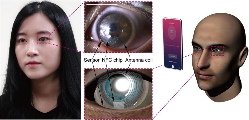 스트레스 호르몬 측정용 스마트 콘택트렌즈를 실제 착용한 모습