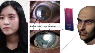 IBS, 눈물로 스트레스 측정하는 '스마트 콘택트렌즈' 개발