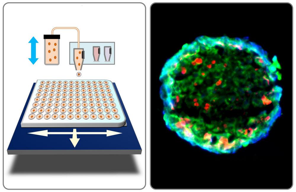 잉크젯 바이오프린팅을 이용한 방광암 모델 제작 및 암 이질성 분석 이미지.