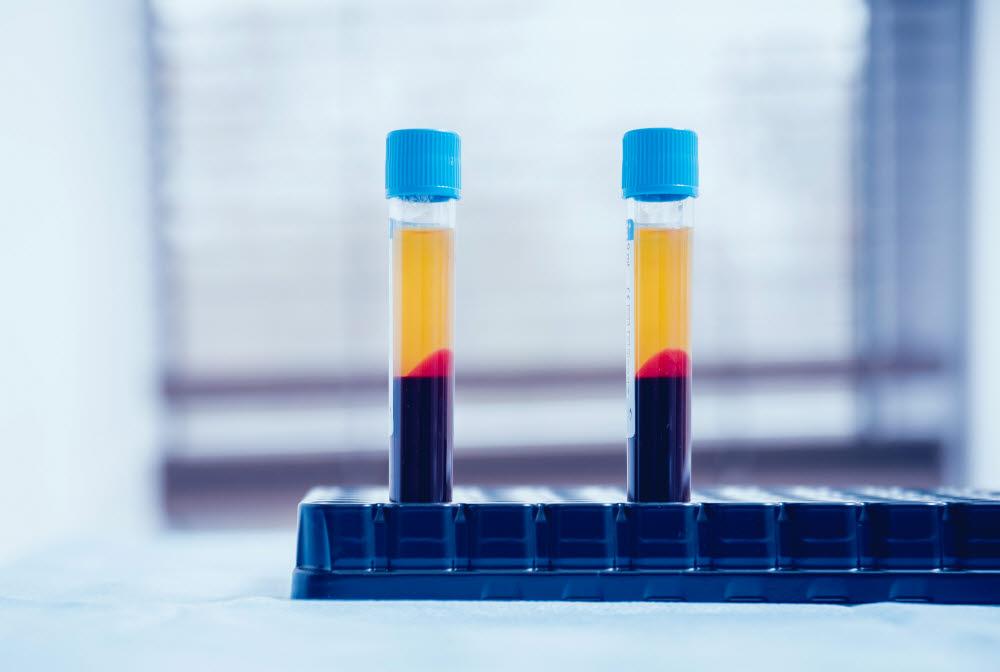 전 세계는 코로나19 혈장 치료제를 개발하기 위해 노력을 다하고 있다. (출처: shutterstock)