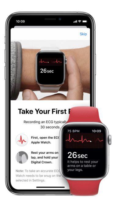 애플워치에 탑재된 ECG 측정 기능