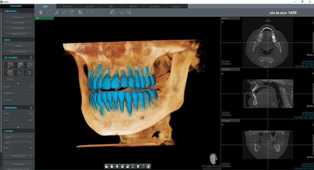 이우소프트, 3D 치아 분리 AI기술 특허·식약처 허가 취득
