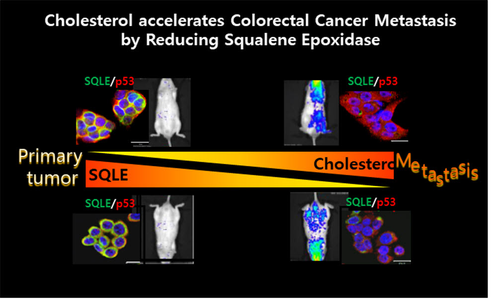 Life Related Research Discovers A Key Regulatory Protein That Causes Colorectal Cancer Malignancies Cholesterol Affects