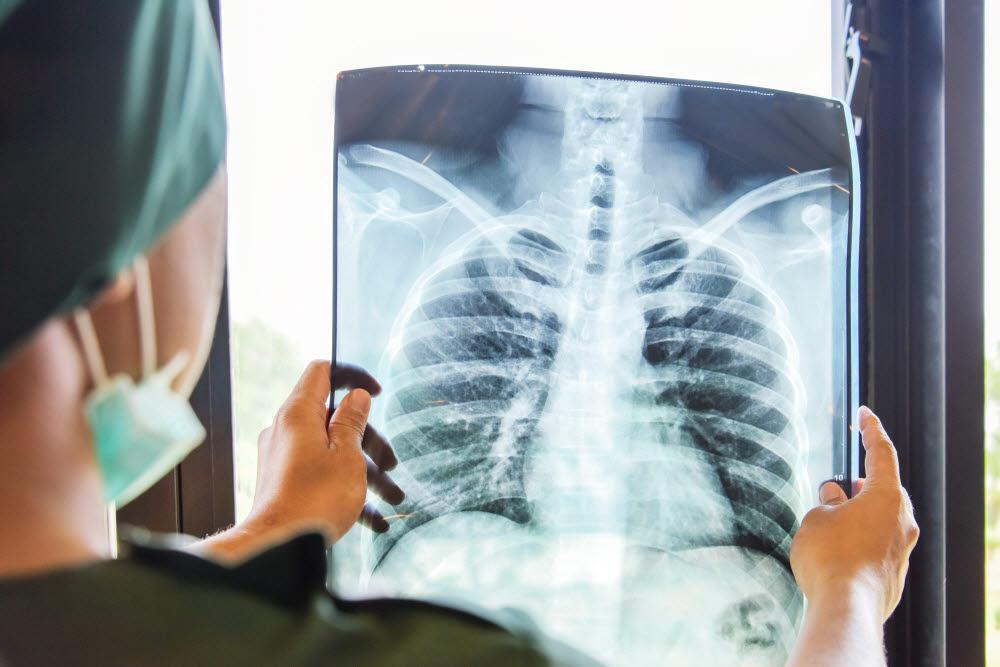 잘 안 알려진 무서운 질병인 만성폐쇄성폐질환은 거의 흡연자만 걸린다. (출처: shutterstock)
