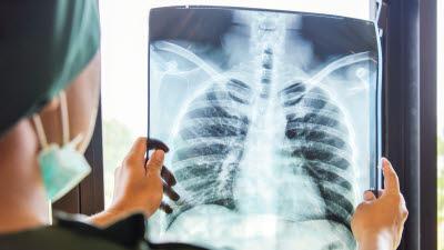 흡연자들이 모르는 병, 만성폐쇄성폐질환