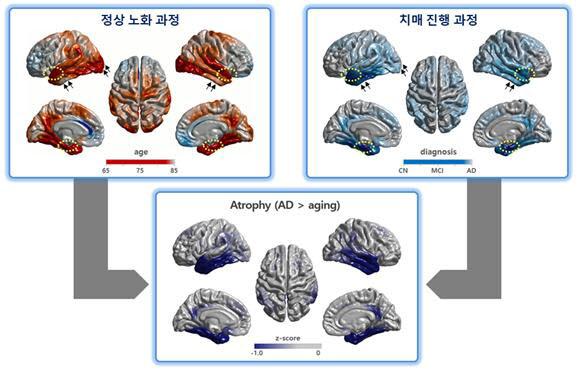 정상 노화 과정(왼쪽)과 치매 진행 과정(오른쪽)에서의 뇌의 변형. 치매 환자는 정상인과 비교해 특정 뇌 부위에서 변화가 심하다.