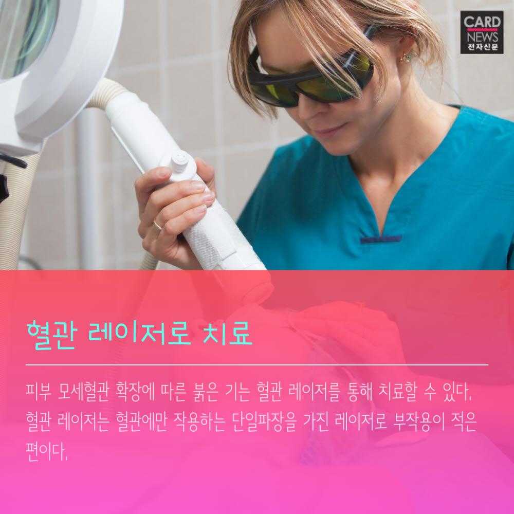 [카드뉴스]겨울철 불청객 '안면홍조'