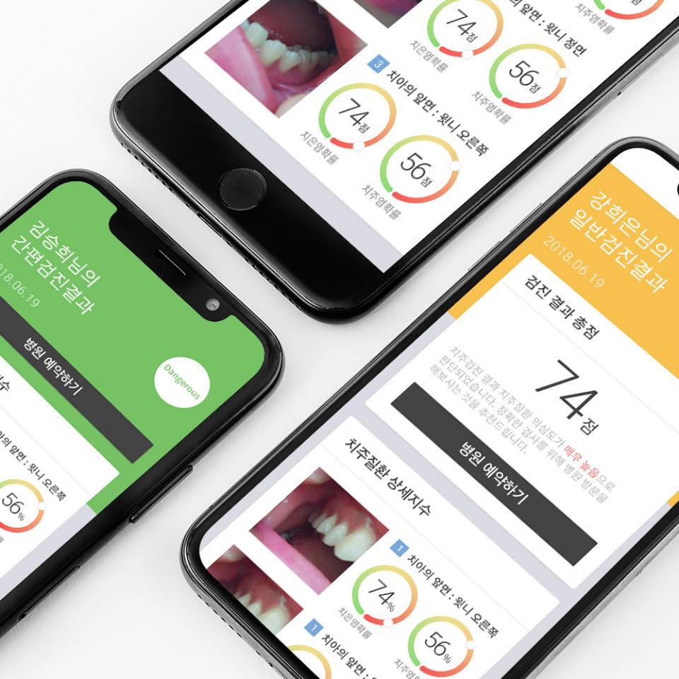 큐티티 구강 검진 플랫폼 이아포 서비스