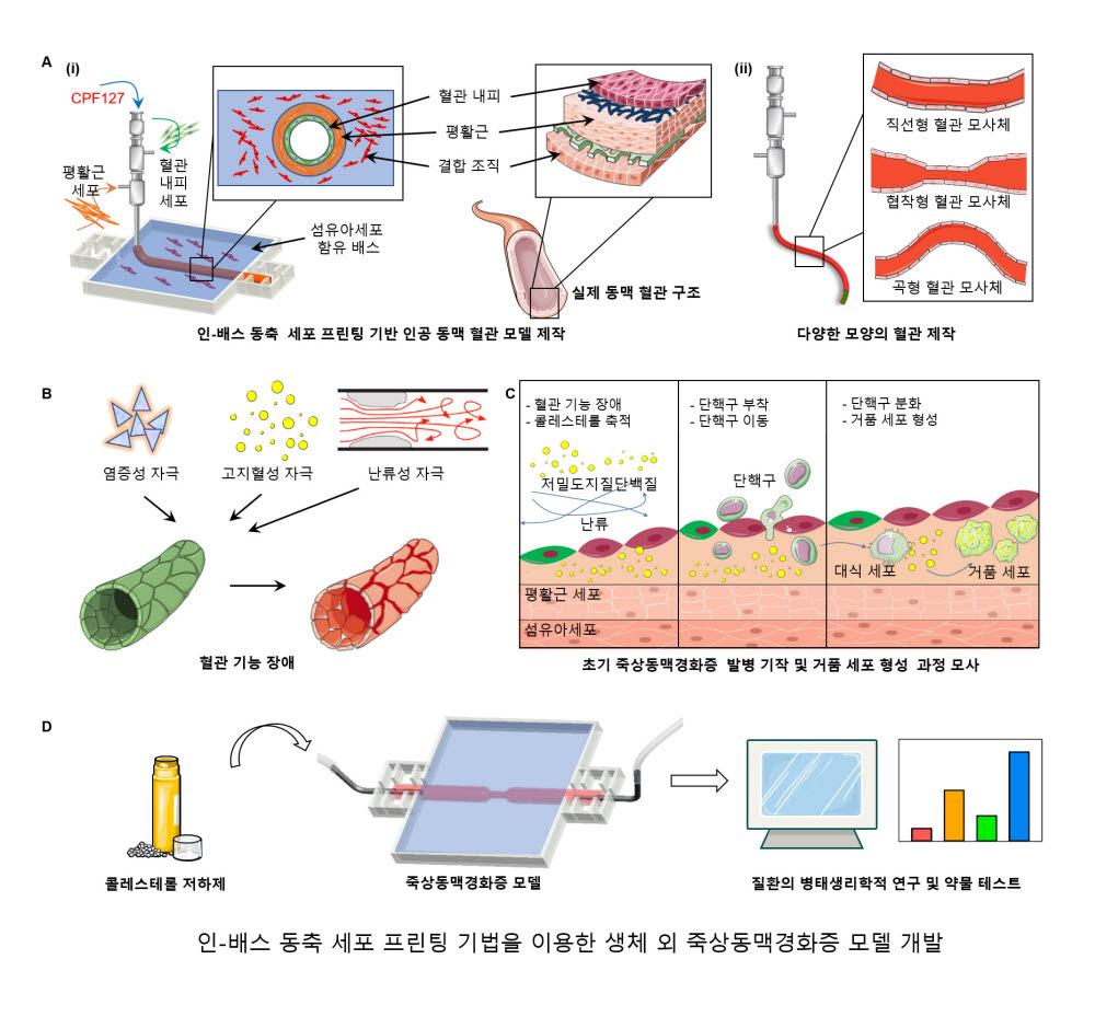 인공동맥혈관 모델 프린팅