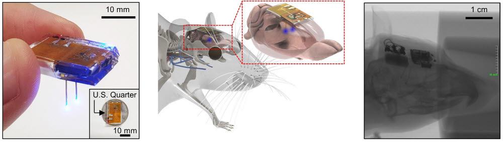 개발된 뇌 이식용 무선 디바이스