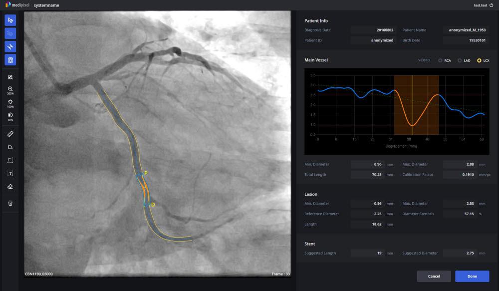 메디픽셀이 개발한 심혈관 자동분석 소프트웨어 메디픽셀XA (사진=메디픽셀)