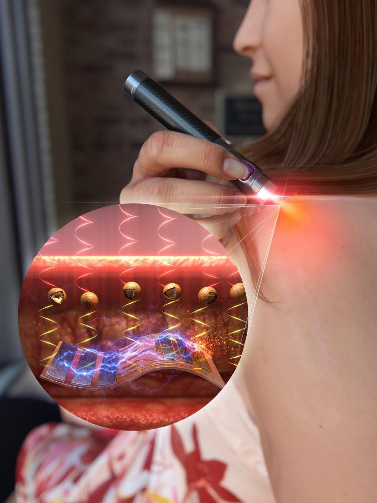 포스텍, 근적외선 제어 약물전달 시스템 개발