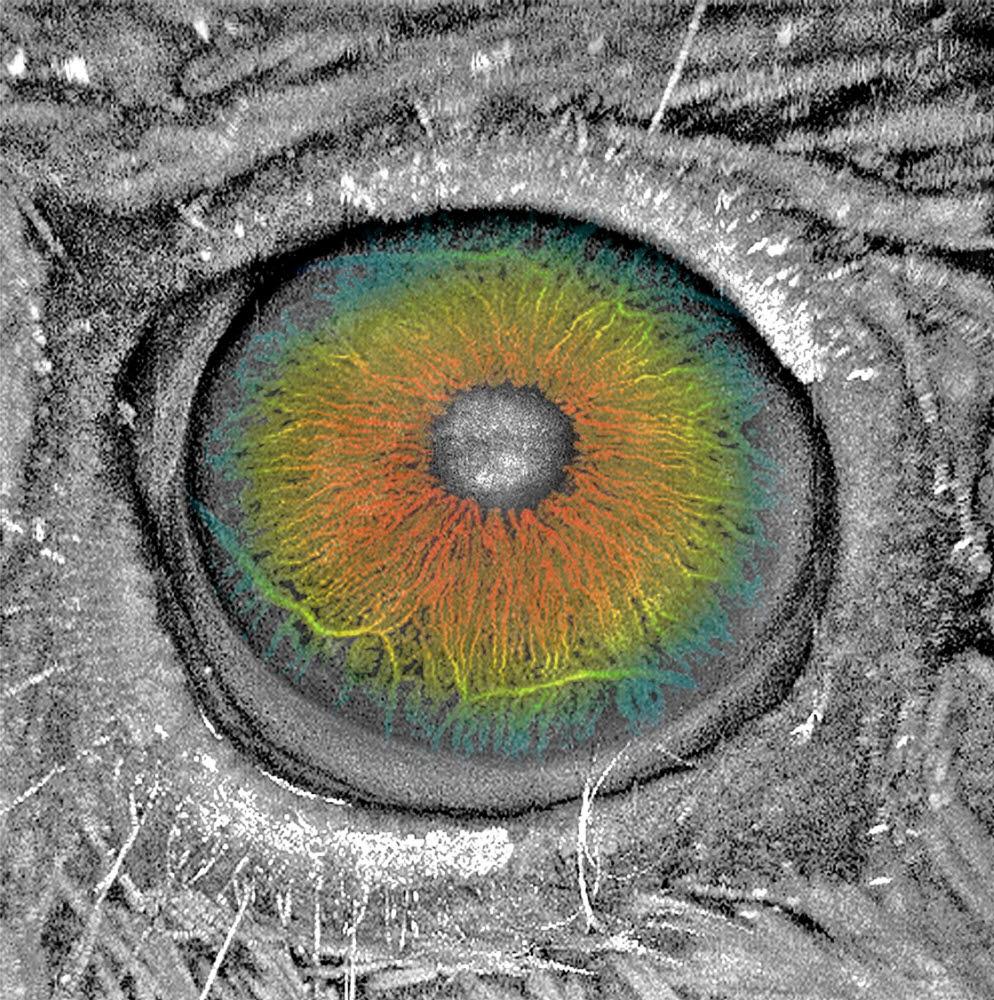광음향과 광간섭으로 동시에 촬영한 쥐 눈 영상