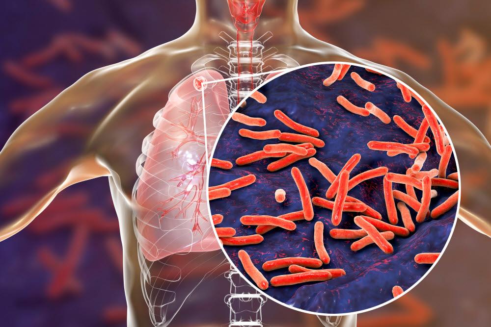 인류와 결핵균과의 전쟁은 아직 끝나지 않았다. 결핵의 전염성은 높은 편이다. (출처: shutterstock)