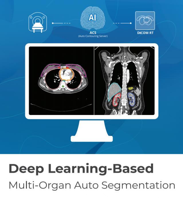 코어라인소프트의 AI 기반 폐암 검진 솔루션 AVIEW ACS 이미지 (사진=코어라인소프트)