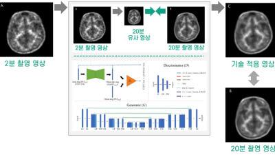 수리연, 딥러닝 이용 뇌 단층 촬영 이미지 복원 기술 민간이전...'촬영시간 10배 단축'