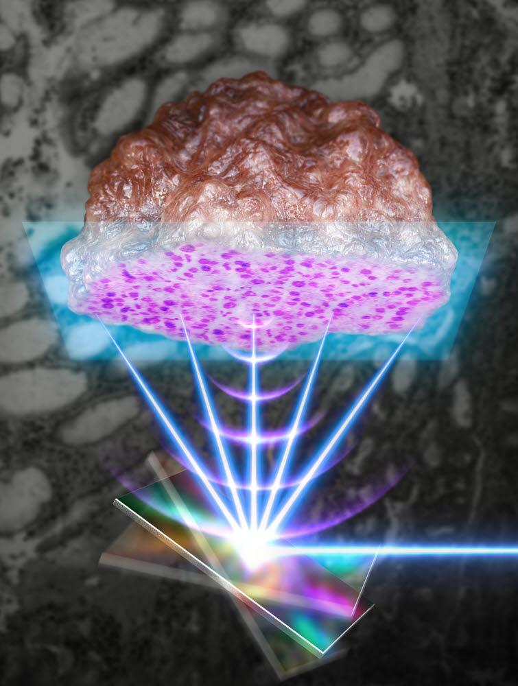 빛과 음파를 빠르게 스캔할 수 있는 MEMS 스캐너를 통해 암환자로부터 절제된 임상조직에 대해 초고속 병리조직검사를 수행할수 있다. 머신러닝 기반 실시간 비표지 조직검사 장치.