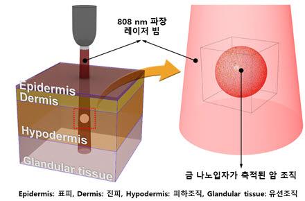 다중층으로 구성된 유방조직에서의 금나노입자를 이용한 광열 유방암치료 모식도.
