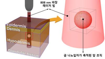 나노입자 이용 광열 암 치료법 임상적용 성큼...KBSI, 공동연구로 광열 암치료 해법 제시